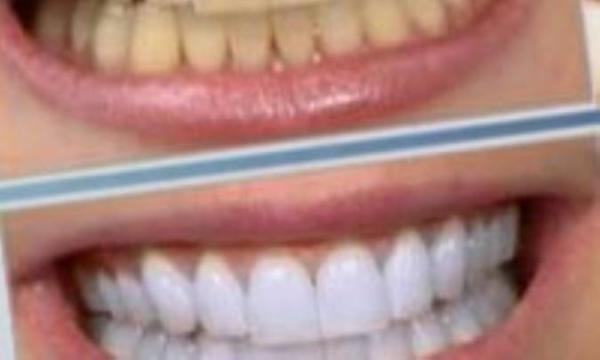 دانستنی های سفیدکردن دندان
